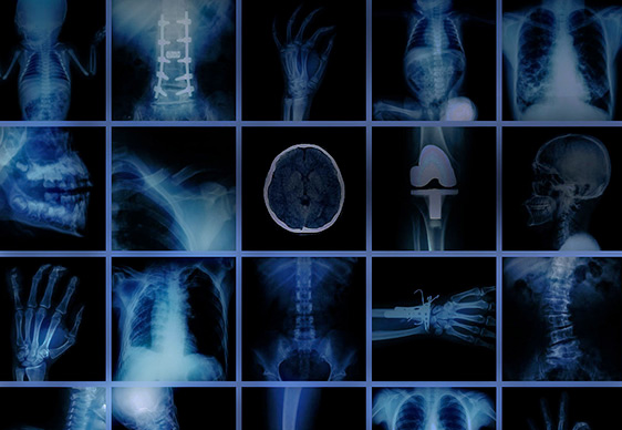 10 Ways to Get the Most out of RSNA